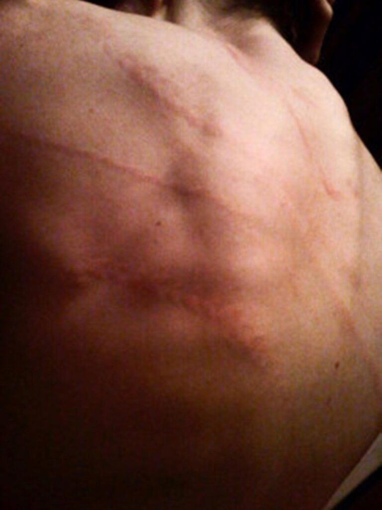 Antes de nombrar públicamente a Manson, Bianco compartió una vez una foto de su espalda cubierta de heridas.